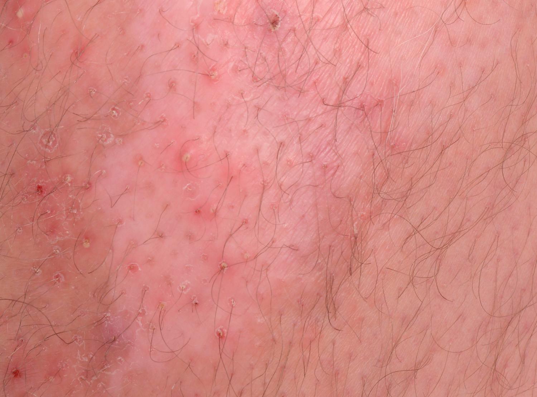 droge huid na scheren